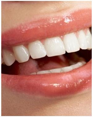 dentesbrancos